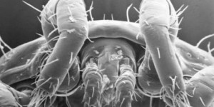 Dust Mites: Tiny Bugs Eating Your Skin (Right Now)